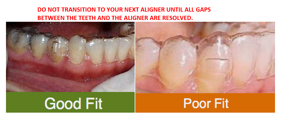 Invisalign good fit or poor fit example